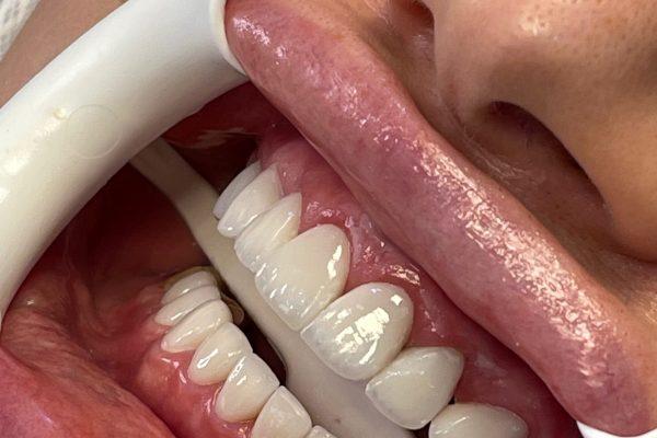 نمونه درمان های انجام شده کامپوزیت ونیر و لمینیت سرامیکی ویکتوری دنتال کر